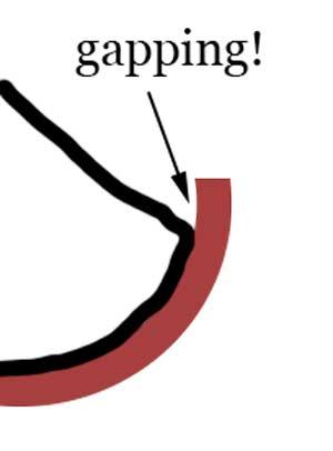 gapping