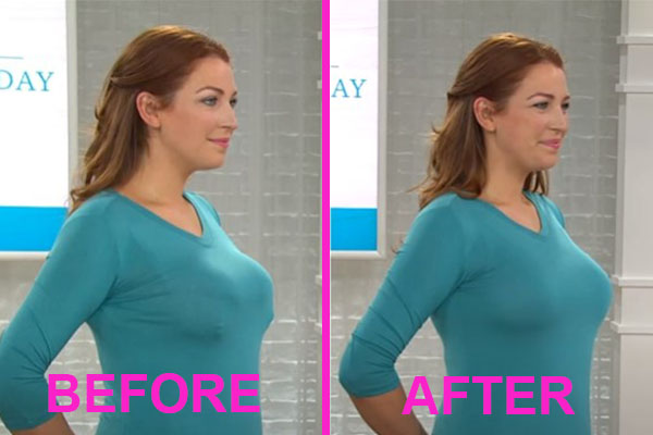 minimizer bra before and after