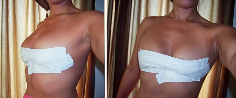 breast taping strapless backless