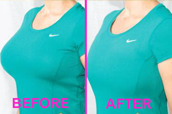best minimizer bra before and after